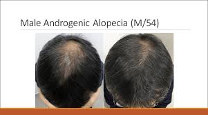new hair growth discoveries follicle thought hair growth treatment news