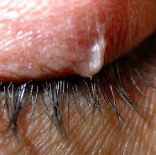 do ingrown hair hurt ingrown eyelash treatment home remedies removal causes