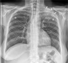 Radiology Of Thorax Lordotic Chest Technique Wikiradiography