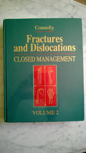 100 fractures and fracture networks 1st edition