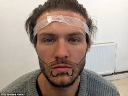 kyle christie splurges 9 000 on a beard transplant daily mail