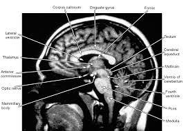 Brain Mri Anatomy Pelvic Muscle Anatomy Mri Tag Pelvic Muscle Anatomy Female Human