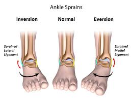 Talus Ligaments Chronic Lateral Ankle Pain Palmerton Pa Pancholi Foot And Ankle