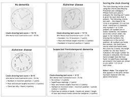 diagnosis and treatment of dementia 2 diagnosis