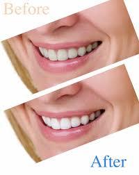 Dentist That Do Teeth Whitening Teeth Whitening Abbeville Dentistry