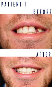 the 18 best images about implant dentistry on pinterest san