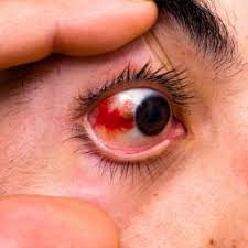 allergic conjunctivitis symptoms causes and treatments