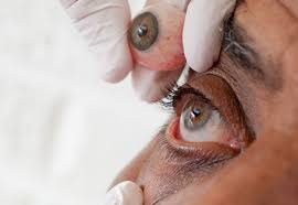 Artificial Eye For Blind How A Prosthetic Eye Is Made
