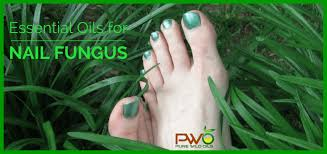 essential oils for nail fungus to the rescue pure wild oils