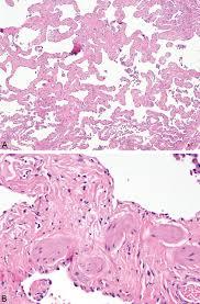 smoking related interstitial fibrosis srif pathologic findings