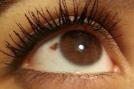 birthmark in eye meaning sectoral heterochromia birthmark