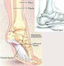 Calcaneus Anatomy Plantar Fasciitis And Heel Spurs Sierra Pacific Orthopedics