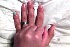 married couple with matching nails talk viral picture personal space