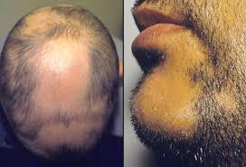 hair loss causes treatments and prevention