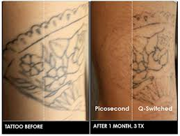 picosure versus q switched nanosecond lasers in tattoo removal