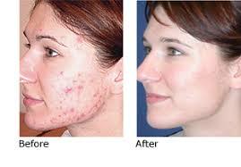 light treatment for skin blu u photodynamic acne treatment patodia eye institute