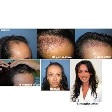 dhi hair transplant reviews hair loss forum