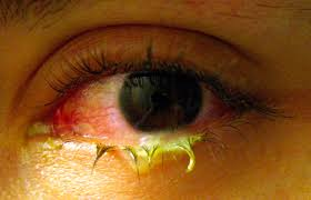 What Is Congenital Blindness Conjunctivitis Wikipedia