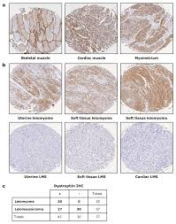dystrophin is a tumor suppressor in human cancers with myogenic