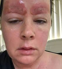 eyebrow feather tattoo uk mum scarred for life and terrified to leave home after botched