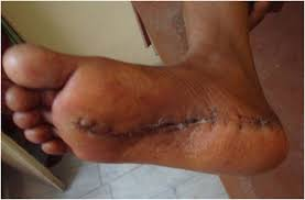 Planters Fasciitis Surgery by Plantar Fibromatosis A Case Report The Foot And Ankle Online