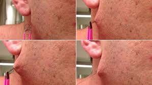 why do ingrown hairs hurt moment man pulls world s longest ingrown hair from his face