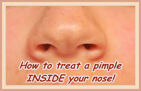 How To Get Rid Of Blind Pimples How To Treat A Pimple In Nose Inside Nostril Helpful Skincare Advice