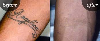 d inkd laser tattoo removal deals unbeatable daily deals on cudo