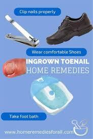 ingrown toenail remedies