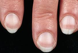 pictures of what your nails say about your health ridges spots
