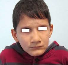 10 year old 10 year old boy with a trisomy 9 mosaicism with dysmorphic features