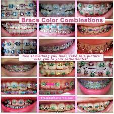 best 25 braces colors ideas on pinterest nail color