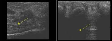 Ankle Ligament Tear Mri Morton U0027s Neuroma
