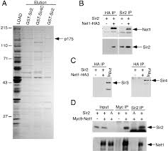 net1 a sir2 associated nucleolar protein required for rdna