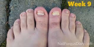 nail fungus update march 2015 nail fungus diary