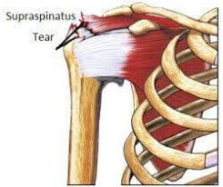 Rotator Cuff Injury From Bench Press Best 25 Infraspinatus Tear Ideas On Pinterest Subscapularis