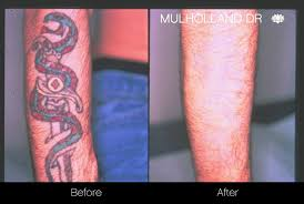 laser tattoo removal before and after photos in toronto spamedica