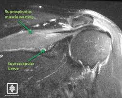 Innervation Of Supraspinatus Suprascapular Nerve Palsy Shoulderdoc