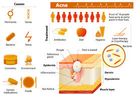 Causes Of Blind Pimples Causes Blind Pimples In Adults Loo