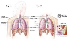 non small cell lung cancer treatment pdq u2014health professional