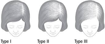 what causes hair loss in women over 50 treating female pattern hair loss harvard health