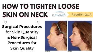 neck skin treatment to improve the skin with prp or