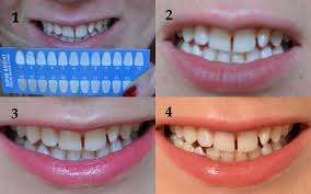 Teeth Whitening Kit With Led Light Smile Sciences Teeth Whitening Kit U2013 Review U2013 The Cruelty Free Face