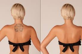 tattoo removal future hair u0026 beauty crawley