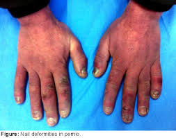 does pernio cause nail dystrophy