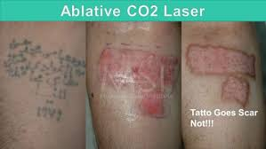 laser tattoo removal the savior