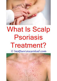 psoriasis lights for sale 253 best is psoriasis contagious images on pinterest