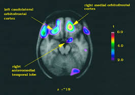 Cortical Blindness May Result From The Destruction Of A Role For The Right Anterior Temporal Lobe In Taste Quality
