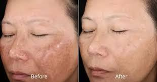 How To Get Rid Of Blind Pimples How To Get Rid Of A Pimple And Its Dark Spot Updated 2017 Quora