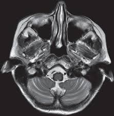Brainstem Mass Challenges In Diagnosing Demyelinating Brainstem Disease